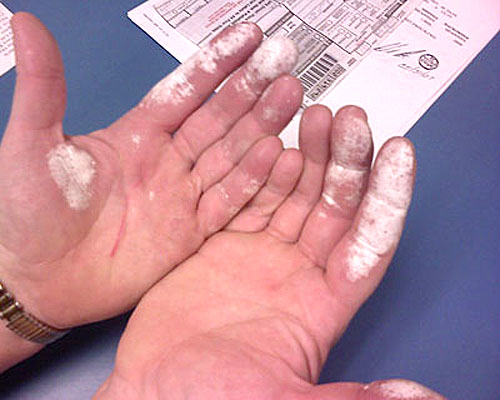 Effects Of Car Battery Acid On Skin